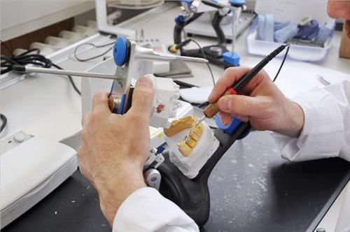 Vì sao không nên bọc sứ và dán răng sứ veneer?