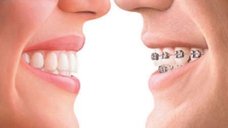 răng của bạn nên có kích thước vừa phải vừa phải