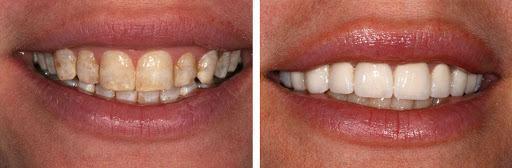 Men răng bị tư tổn và men răng đầy đủ