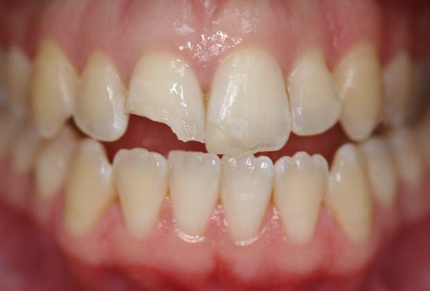 Phục hình răng mẻ, vỡ nhẹ