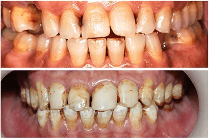 răng bị vết bẩn, ố răng nghiêm trọng: