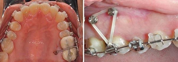 Cách niềng răng bằng minivis.
