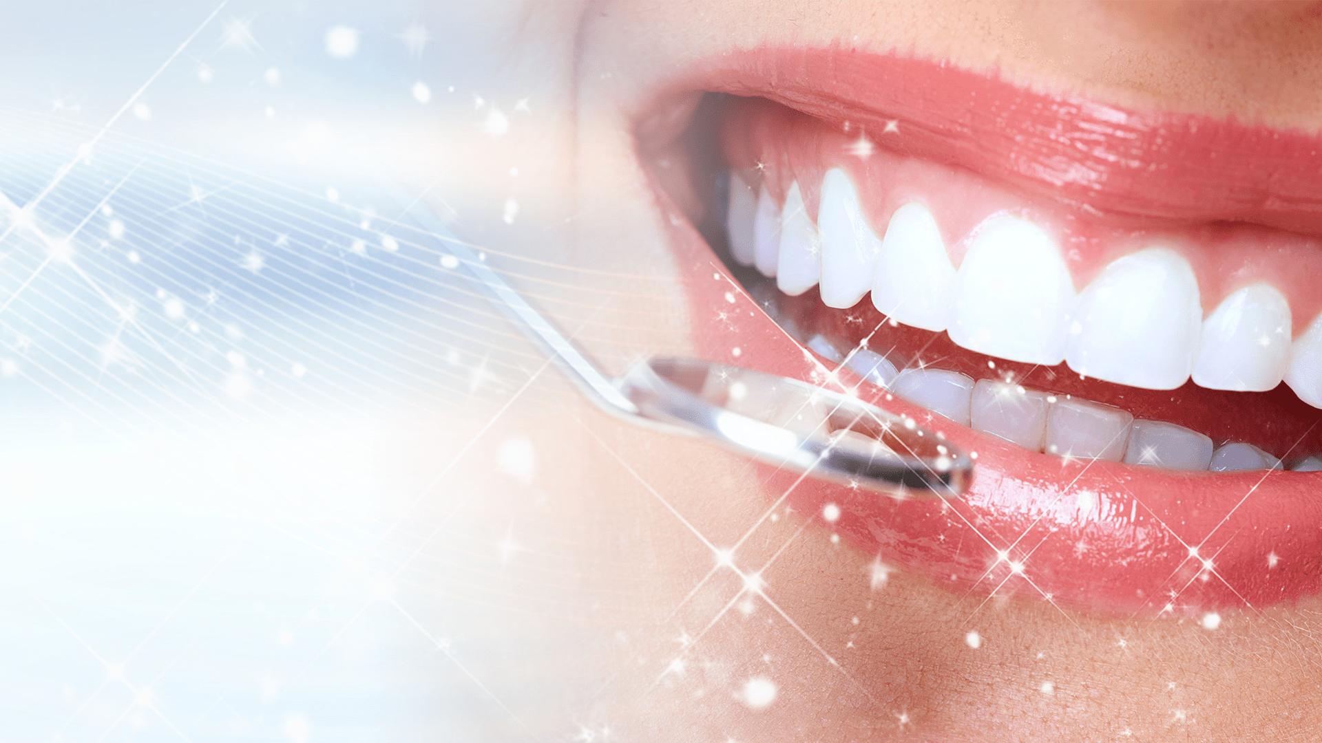 Niềng răng như thế nào?
