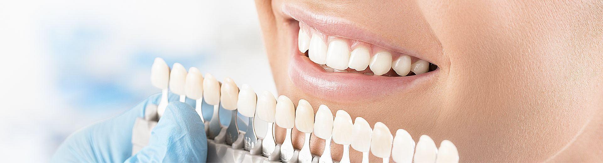 Ai nên dán sứ veneer răng?