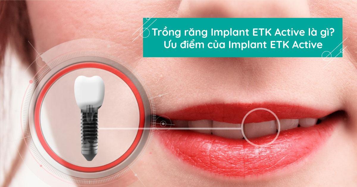 Implant ETK Active là gì? Ưu điểm của trồng răng Implant ETK Active