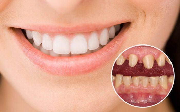 Nên chọn loại răng sứ nào cho răng?