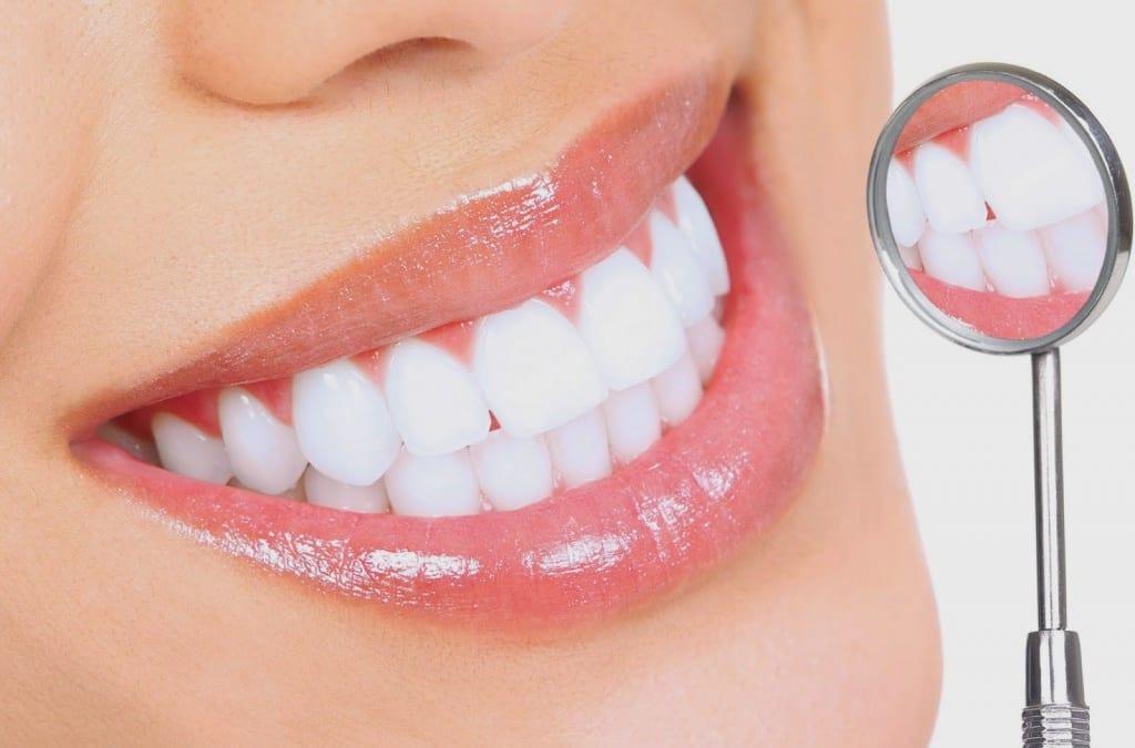 Về tuổi thọ của bọc răng sứ và dán sứ Veneer