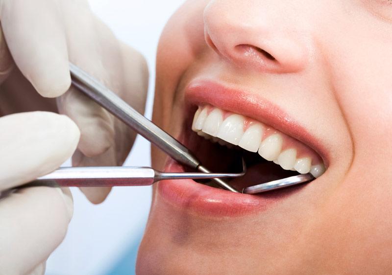 Lợi ích của bọc răng sứ là gì?