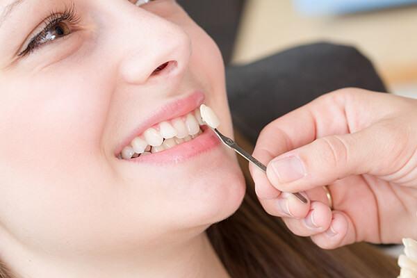 Ưu nhược điểm các loại răng sứ thẩm mỹ mới nhất 2020