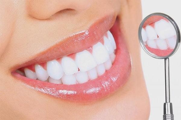 So sánh bọc răng sứ và dán răng sứ thẩm mỹ