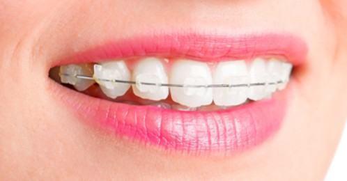 Ưu điểm nổi bật của niềng răng mắc cài pha lê