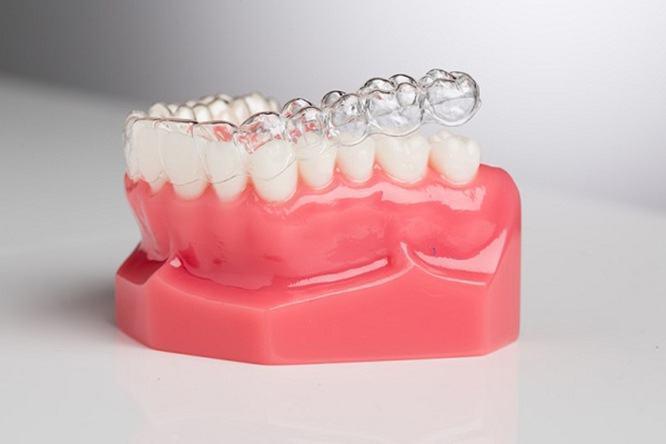 Niềng răng Invisalign và chỉnh nha mắc cài loại nào tốt hơn?