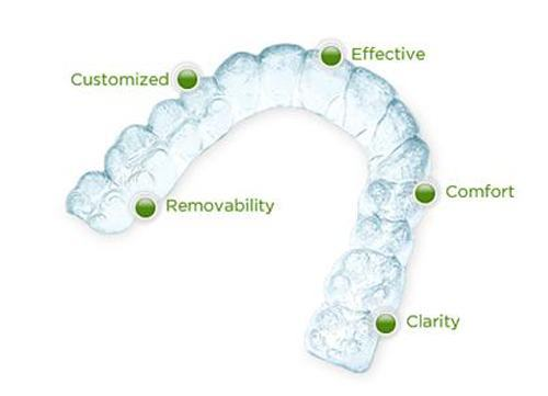 Niềng răng trong suốt (invisalign)