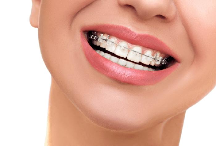 Niềng răng mắc cài pha lê là gì?