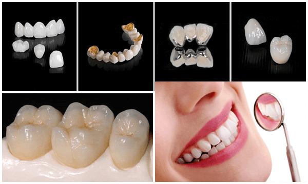 Phục hình răng sứ kim loại quý