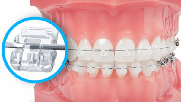 Chi phí niềng răng mắc cài pha lê
