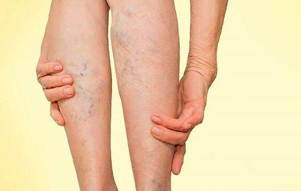 Giãn tĩnh mạch chân có chữa được không